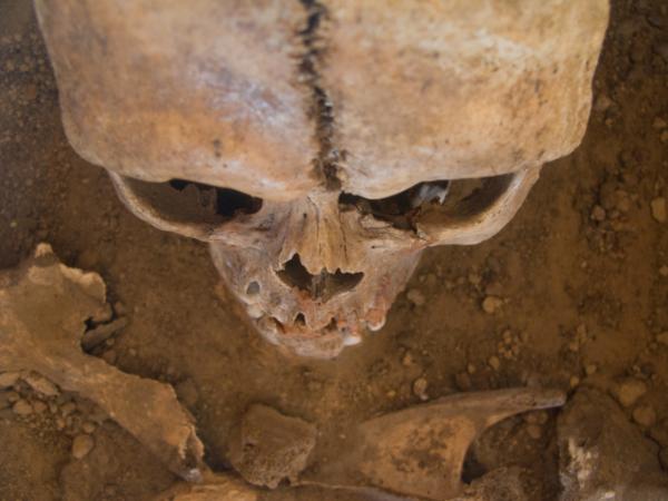 Már 3000 éve szenvedünk az érszűkülettől