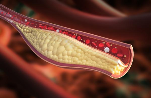 Előzze meg a további problémákat trombózis után