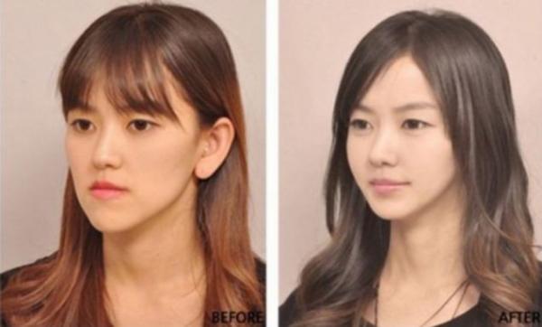 A koreai plasztikai sebészet csodája – Képek előtte, utána