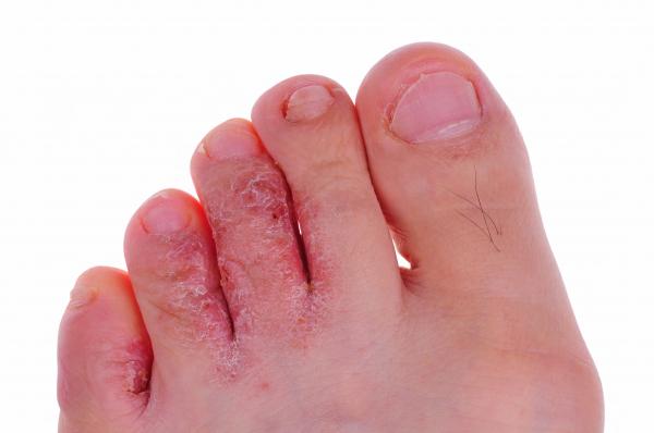 láb baktériumok)