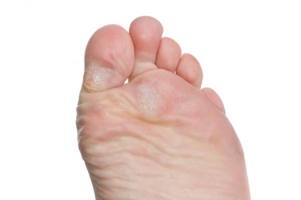 vörös folt a lábujjak és a hámlás között
