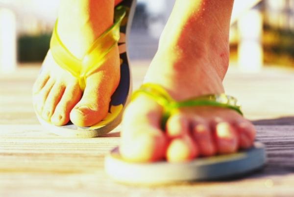 6 szörnyű dolog, amit a flip-flop a lábunkkal tesz