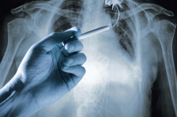 Ettől lehet tüdőrákod! Nem csak a dohányosok betegsége