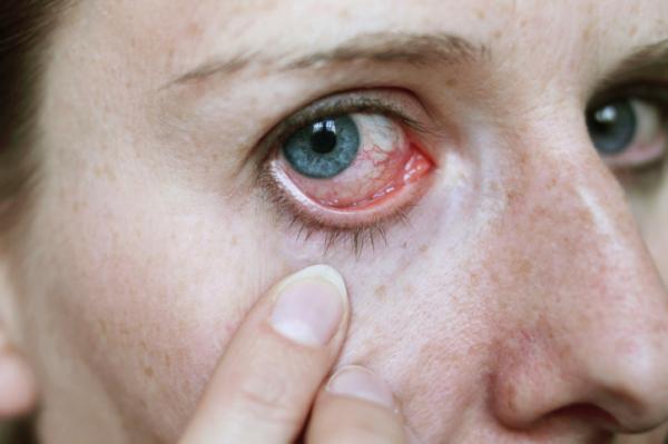 Mit jelezhet a bevérzett szem?