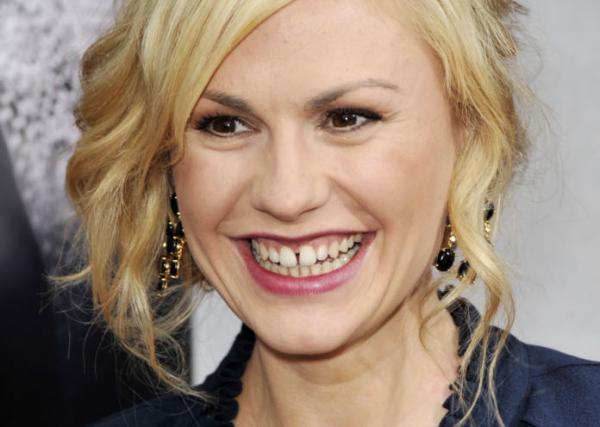 5 sztár botrányosan ronda fogakkal