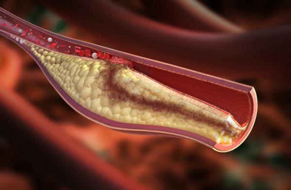 Így ismerd fel időben a trombózist!