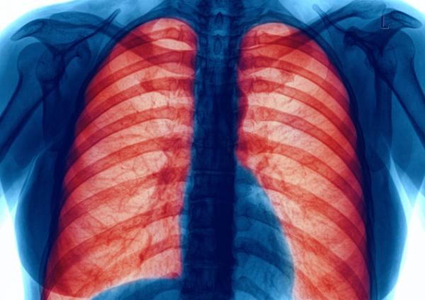 Mit tehetünk tüdőnk egészségéért?