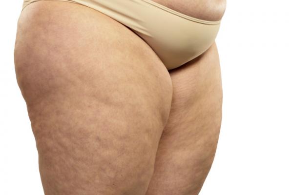 Ennyibe kerül az elhízás