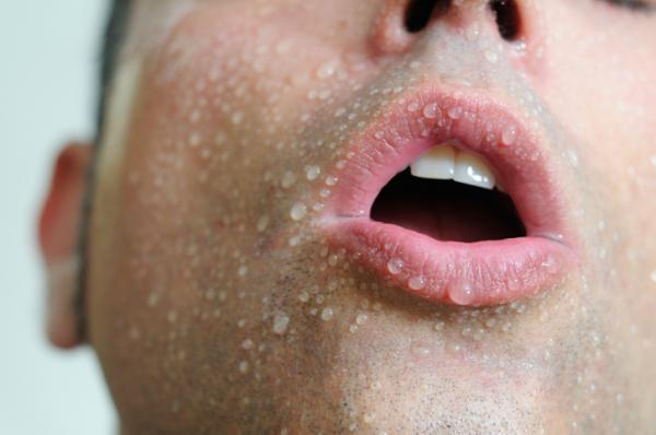 szájpadló rák tünetei helminthiasis viszketés