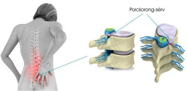 Mi okozza a hát- és gerincfájást?