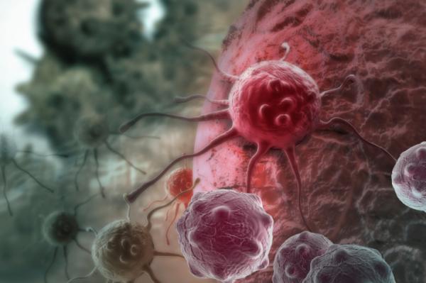 A halálesetek negyedéért a rák felelős