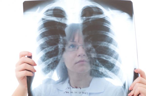 Tüdőszűrés: Vegyünk egy mély lélegzetet...