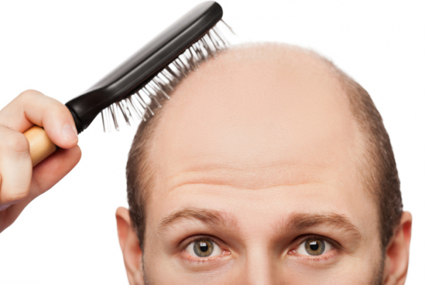 Húzza ki a hajszálait, ha dúsabb hajat szeretne!