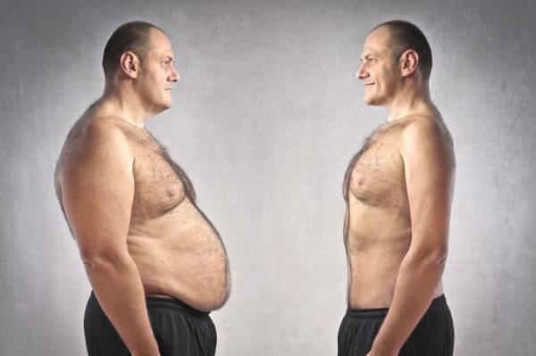 Az elhízás 14 évvel is megrövidítheti az életünket