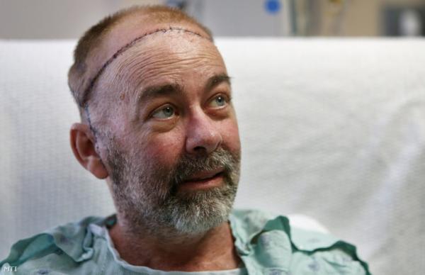 Új koponyacsontot és fejbőrt kapott egy férfi