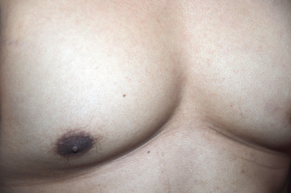 Az elhízott férfiak betegsége a mellrák
